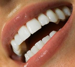 механическое отбеливание зубов