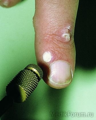 Бородавки на стопе: причины появления и лечение | WMJ.ru