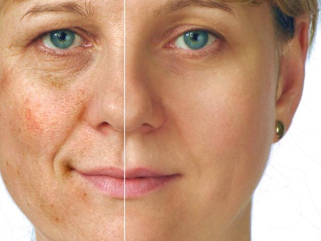 Появление пигментных пятен на лице во время беременности