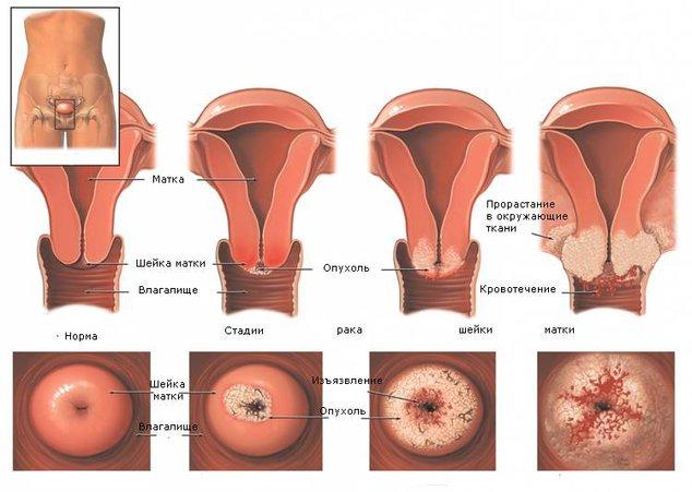 Как предложить заняться сексом раком