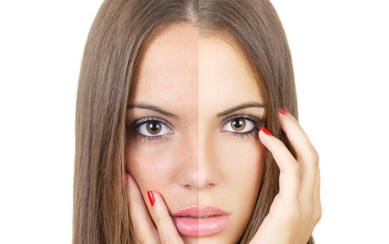 Как сделать ровный тон кожи