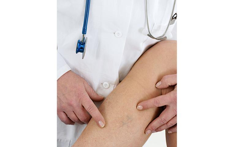 Что делать если болят вены на ногах лечение дома