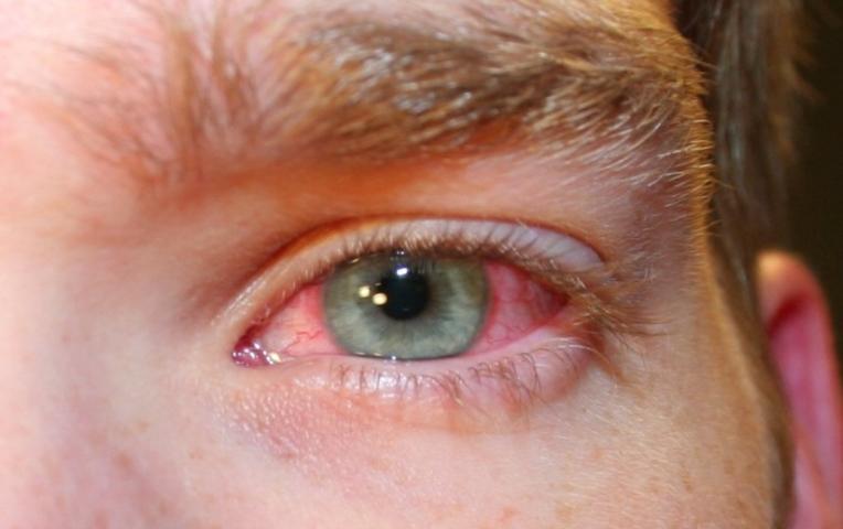 Почему у человека глаза красные