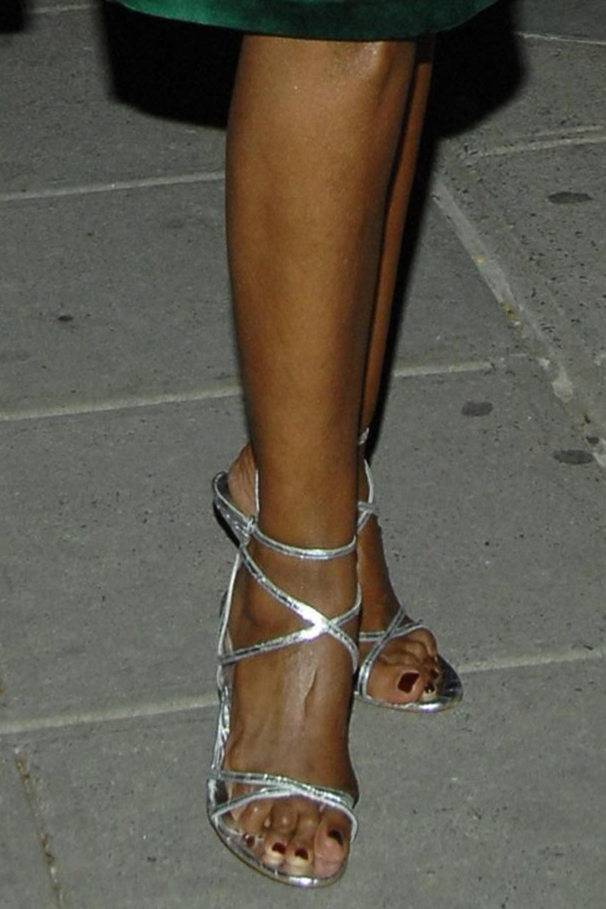 Страшные ноги звезд (15 фото)