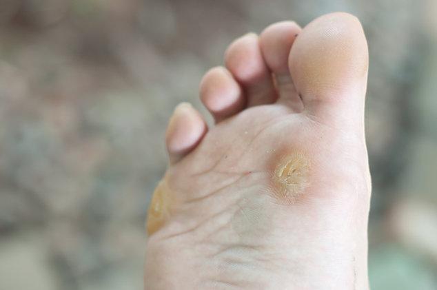 Чем выводят бородавки на пальце ноги