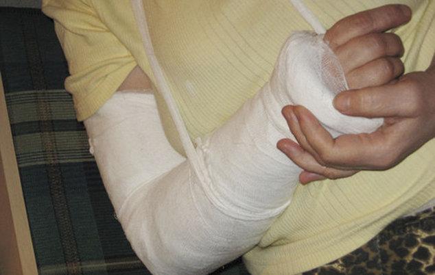 Перелом сустава руки у детей стоимость операции по имплантации протеза локтевого сустава киев
