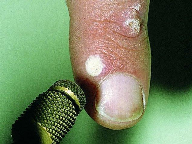 Папиллома на коже: причины и виды отростков, методы лечения, фото
