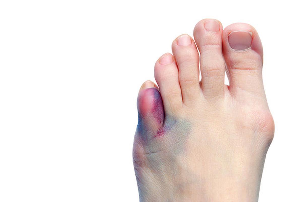 Лечение ушиба сустава пальца болит колено горячее на ощупь