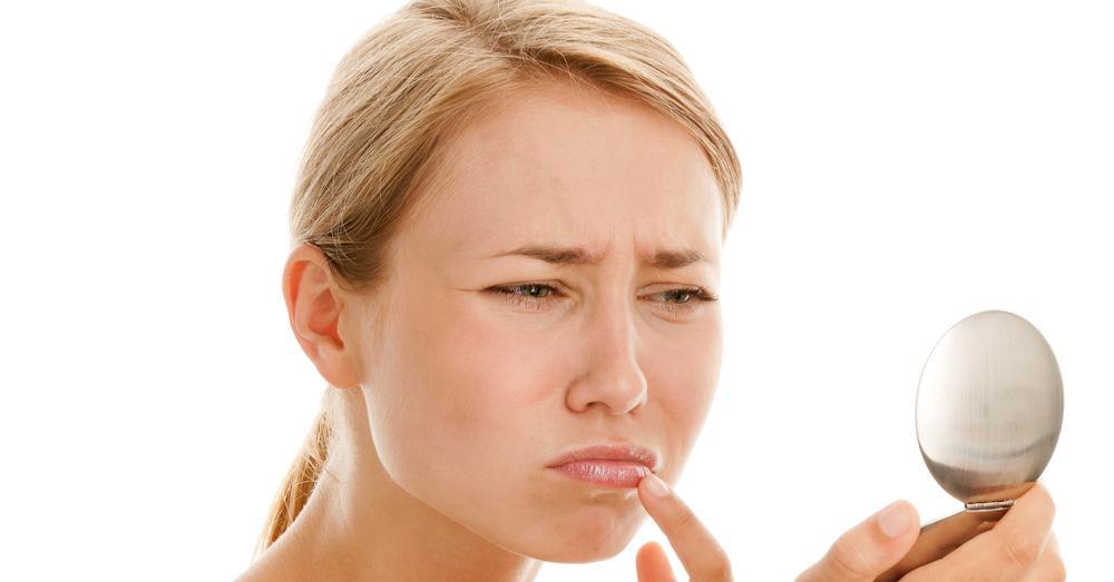 Крем от герпеса на губах недорогой