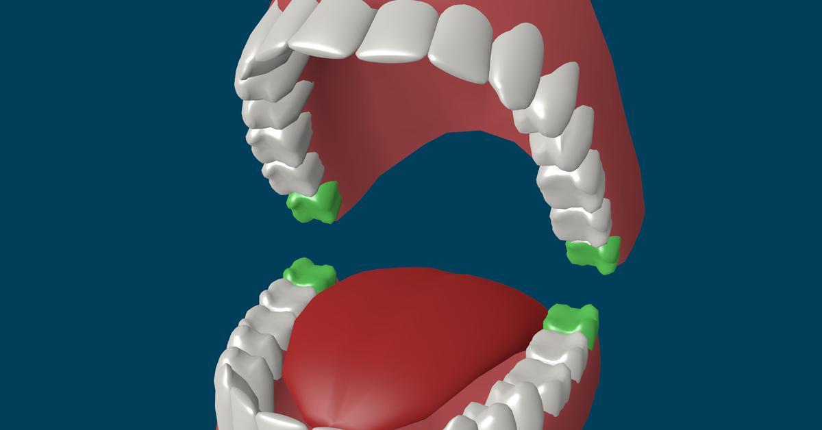 Режется зуб мудрости болит