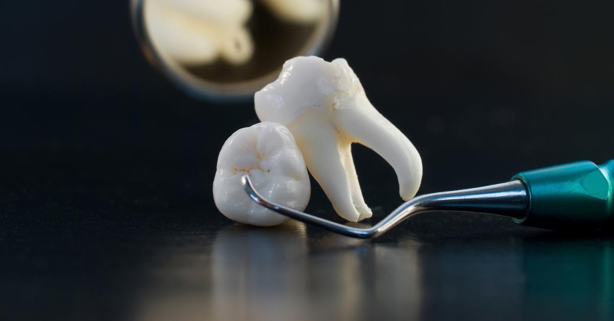 Местные осложнения при удалении зуба
