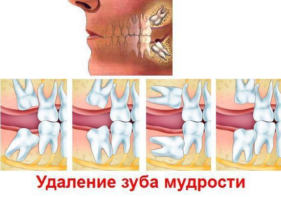 Почему возникает боль при прорезывании зуба мудрости? полезногО делает