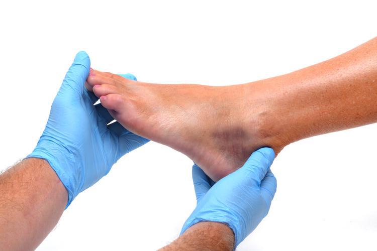 артрит шишка на ноге бывает